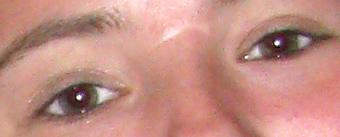 lkb-redeye-closeup.jpg